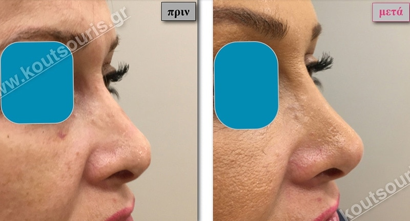 rhinoplasty-with-hyaluronic-acid-33