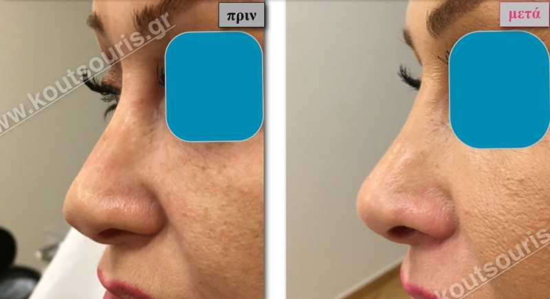 rhinoplasty-with-hyaluronic-acid-34