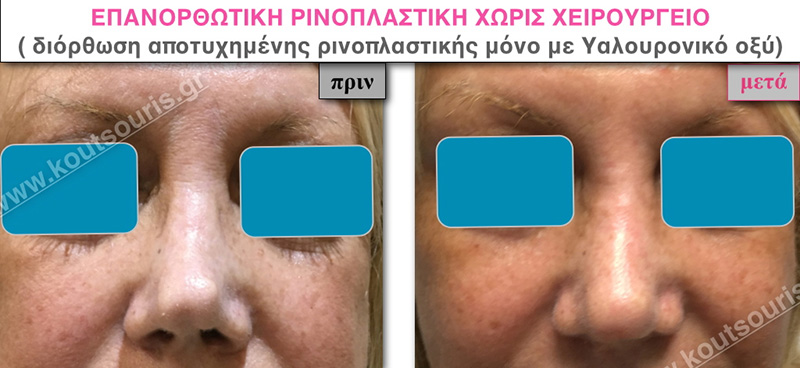 rhinoplasty-with-hyaluronic-acid-35