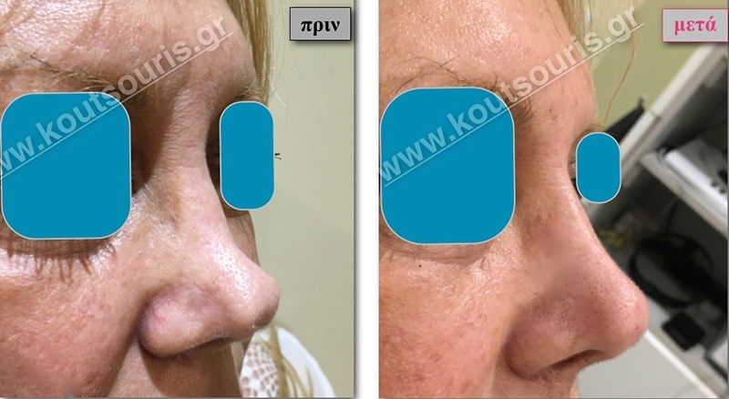 rhinoplasty-with-hyaluronic-acid-36
