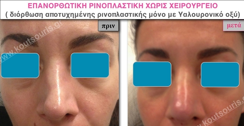 rhinoplasty-with-hyaluronic-acid-38