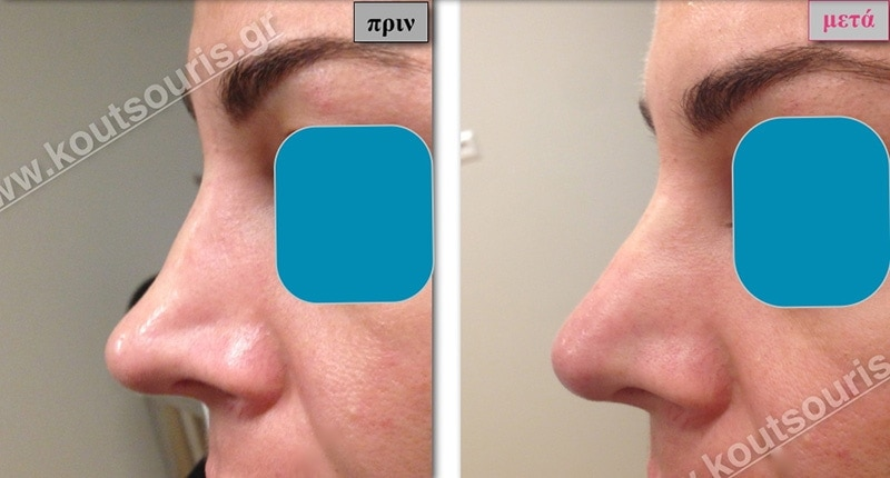 rhinoplasty-with-hyaluronic-acid-39