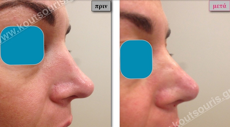 rhinoplasty-with-hyaluronic-acid-40