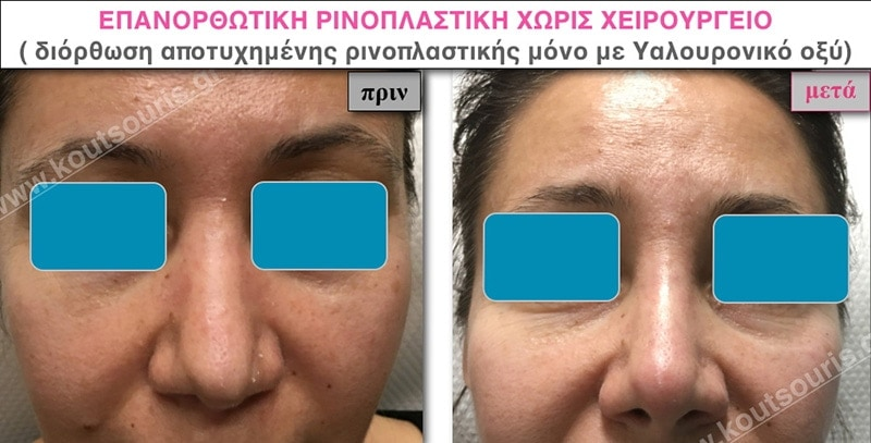 rhinoplasty-with-hyaluronic-acid-41