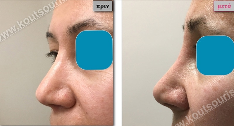 rhinoplasty-with-hyaluronic-acid-43