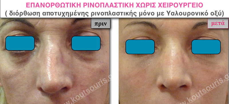rhinoplasty-with-hyaluronic-acid-44
