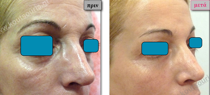 rhinoplasty-with-hyaluronic-acid-45