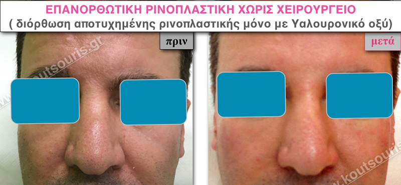 rhinoplasty-with-hyaluronic-acid-46