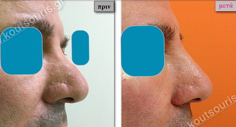 rhinoplasty-with-hyaluronic-acid-47