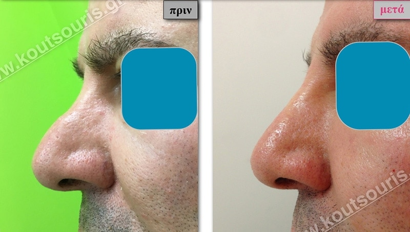 rhinoplasty-with-hyaluronic-acid-48