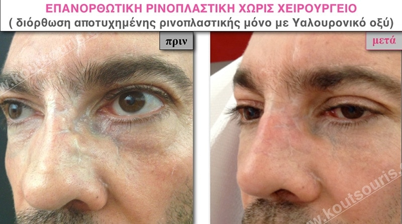 rhinoplasty-with-hyaluronic-acid-49