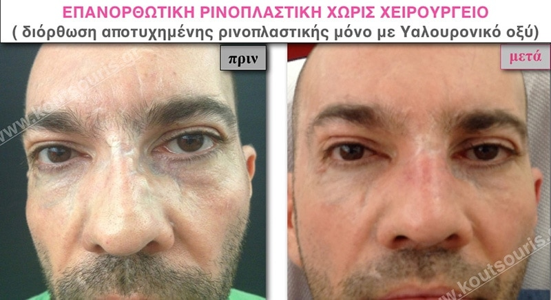 rhinoplasty-with-hyaluronic-acid-50