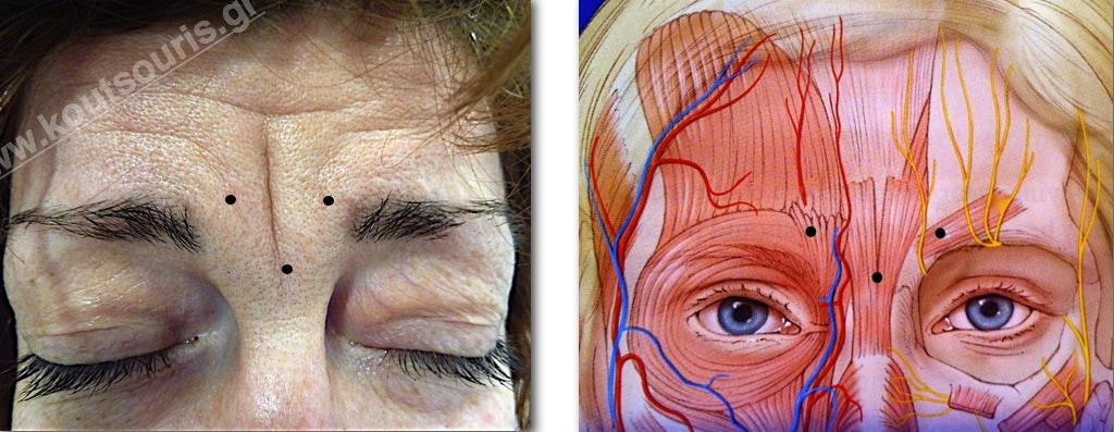 Glabella Wrinkles correction without surgery — Μιχάλης