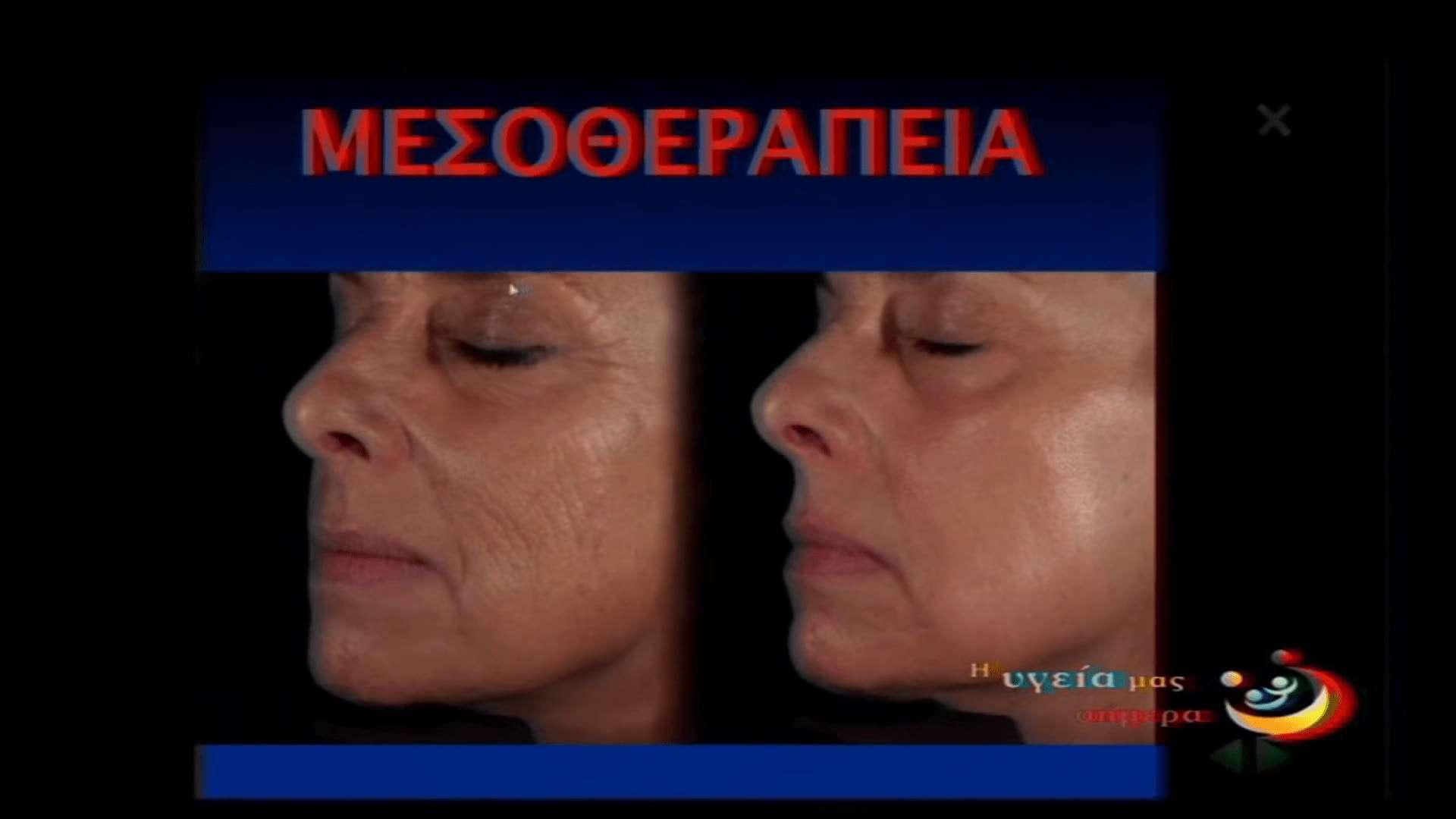 Μεσοθεραπεία σε γυναικείο πρόσωπο