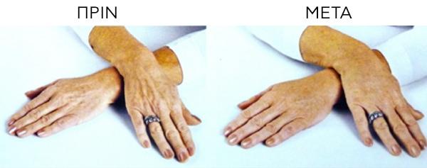 Αναζωογόνηση-Χεριών - Πριν και Μετά