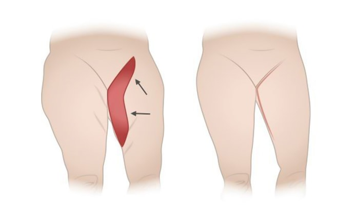 extended medial thigh lift
