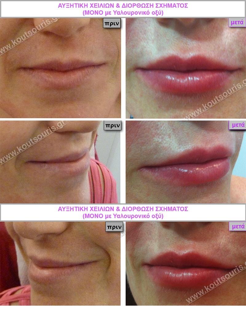 Ρυτίδες σε χείλη γυναίκας πριν και μετά